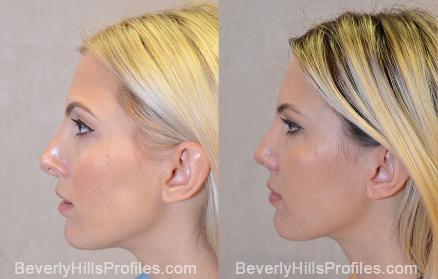 left side view - Female patient before and after Revision Rhinoplasty