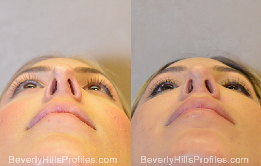underside view - Female patient before and after Revision Rhinoplasty