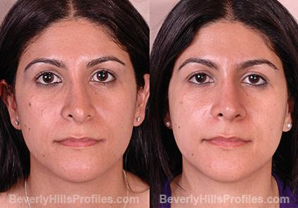 Female before and after Revision Rhinoplasty