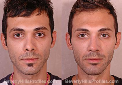 Photos Female patient before and after Revision Rhinoplasty