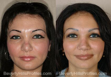 Images Female patient before and after Revision Nose Surgery