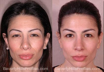 Female patient before and after Revision Nose Surgery