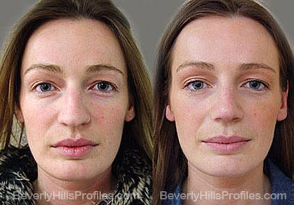 Photos Female patient before and after Revision Nose Job