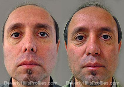 Images patient before and after Revision Rhinoplasty