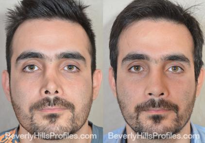 Male patient before and after Revision Rhinoplasty - Photos