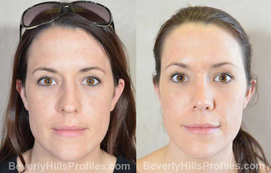 photos Female patient before and after Facelift, front view