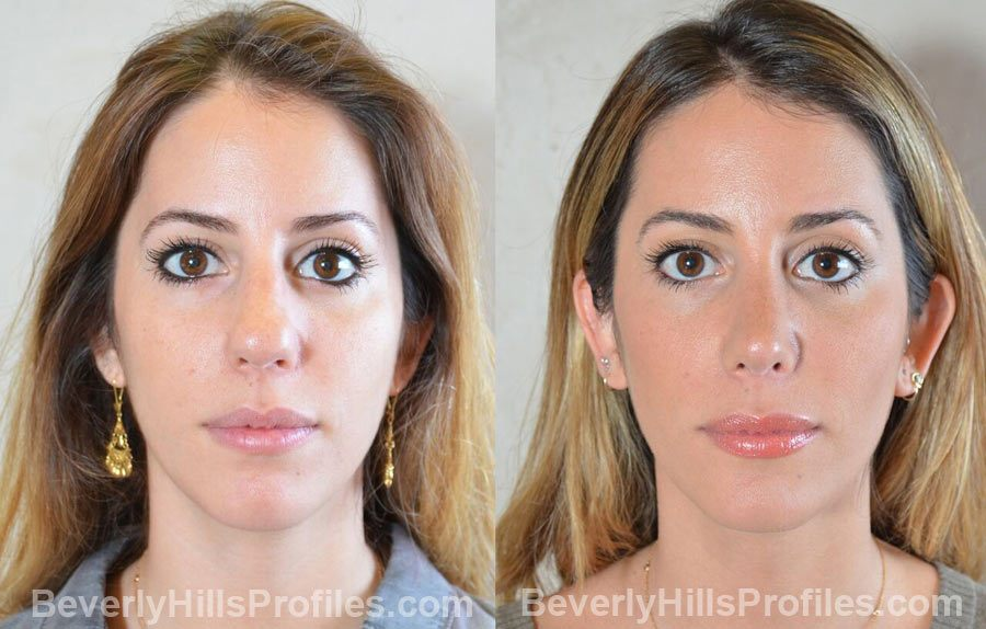 imgs Female patient before and after Nose Surgery, front view