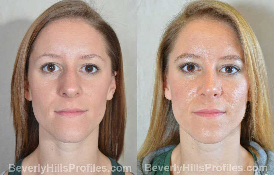 pics Female patient before and after Nose Surgery - front view