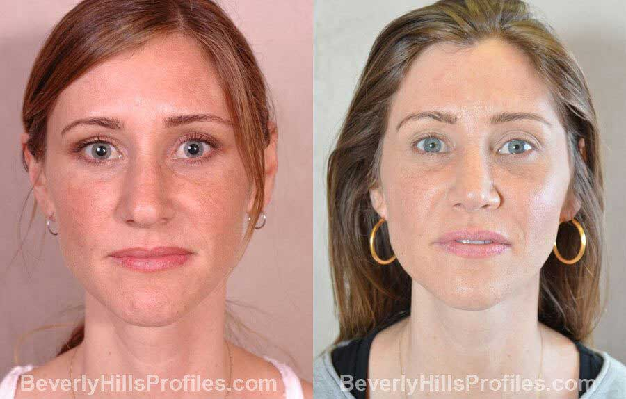 imgs Female patient before and after Nose Surgery - front view