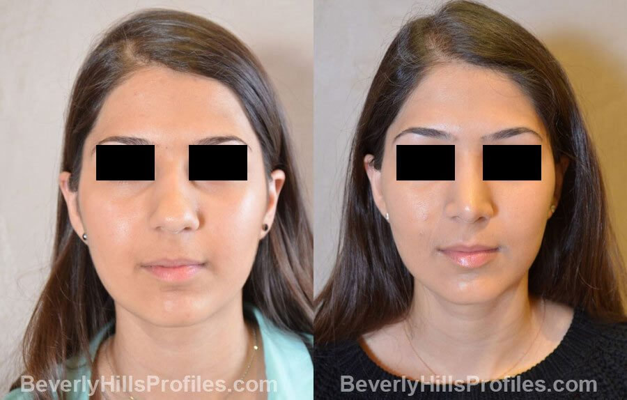 images Female patient before and after Nose Surgery - front view