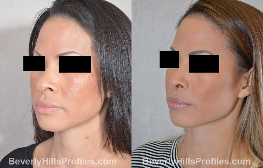 pics Female patient before and after Nose Surgery, front view
