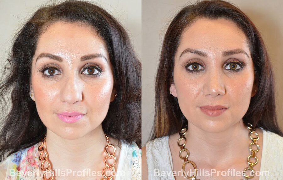 front view Female patient before and after Nose Surgery