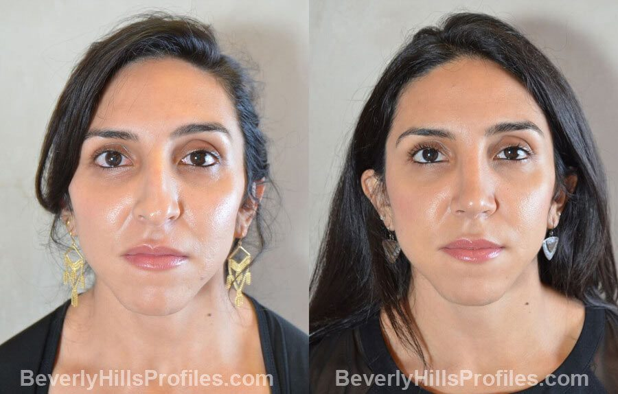 front view - Female patient before and after Nose Surgery