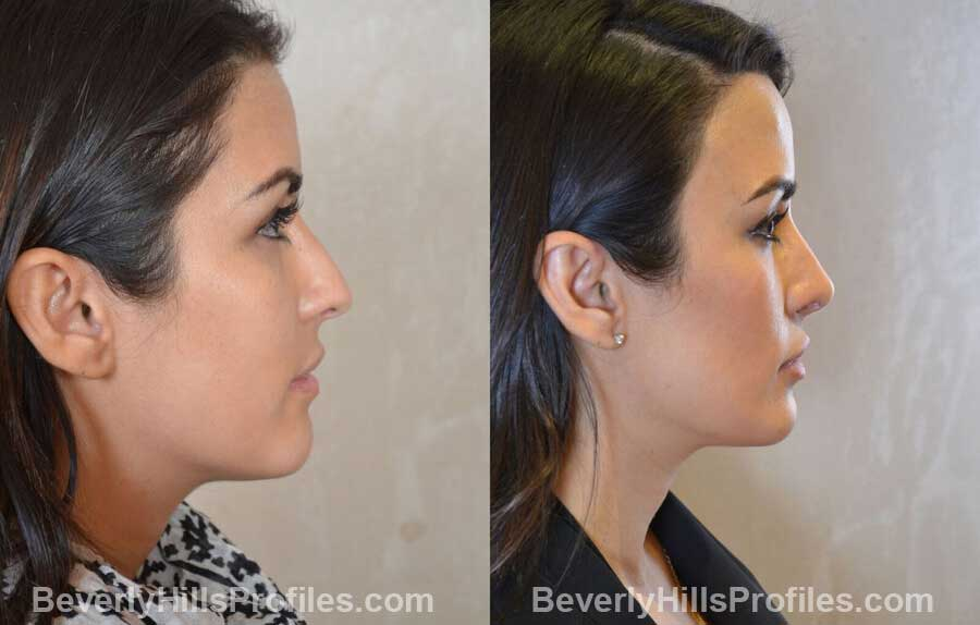 front view - Female patient before and after Nose Surgery Procedures