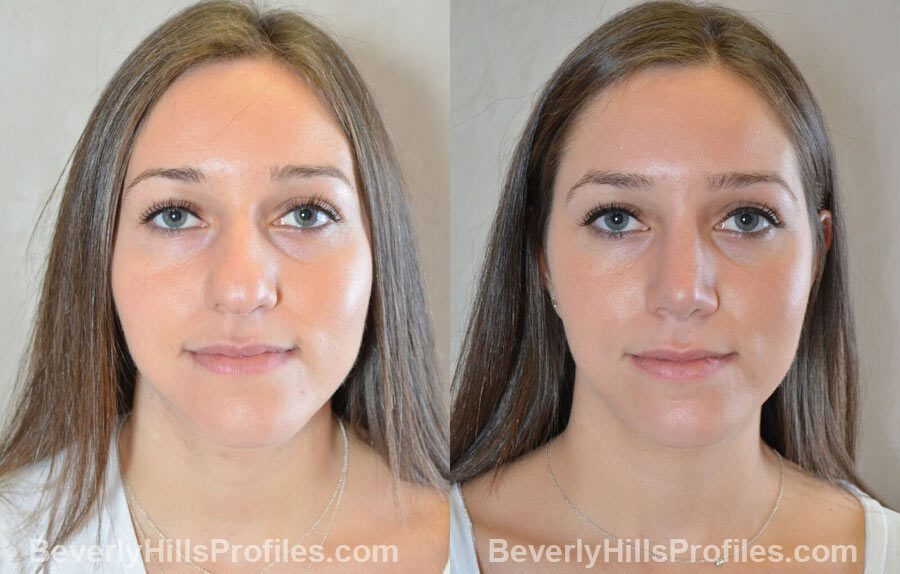 front view Female patient before and after Nose Surgery Procedures