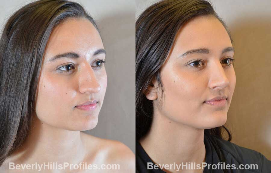 pics Female patient before and after Nose Surgery Procedures front view