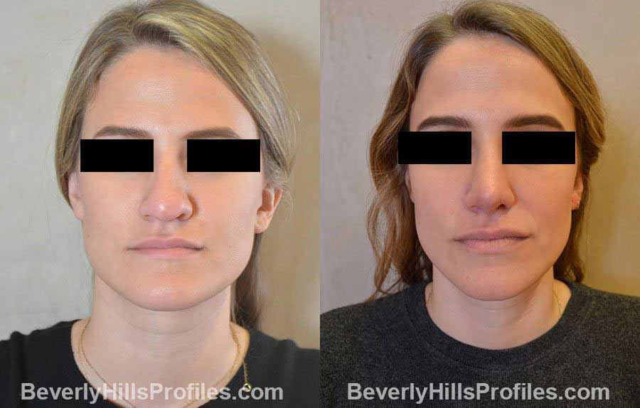 before and after Nose Surgery - front view