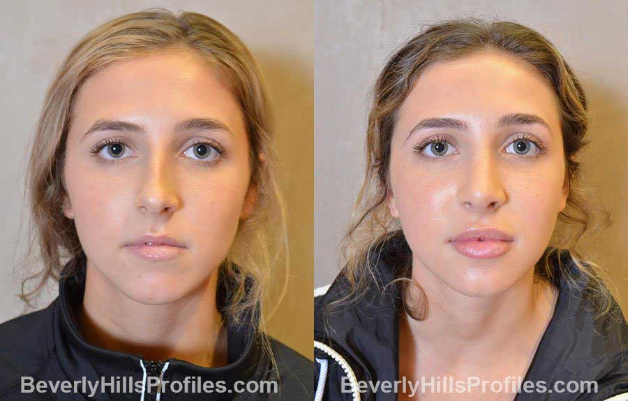 photos before and after Nose Job - front view