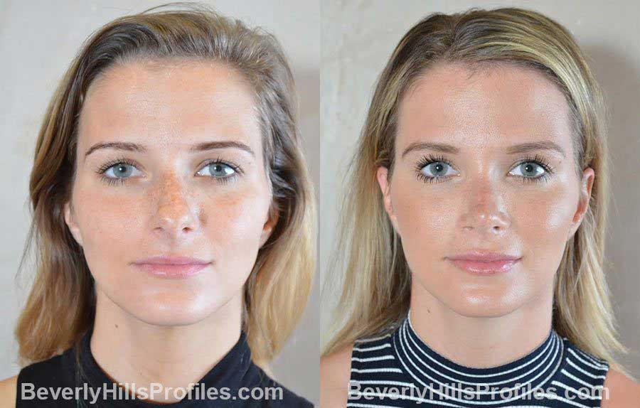 photos before and after Nose Surgery Procedures - front view
