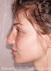 Female face - after Nasal Anatomy treatment, left side view