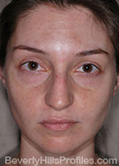 Female face - before Nasal Anatomy treatment, front view