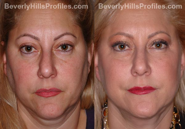 Facelift Before and After Photo Gallery - female, front view, patient 9