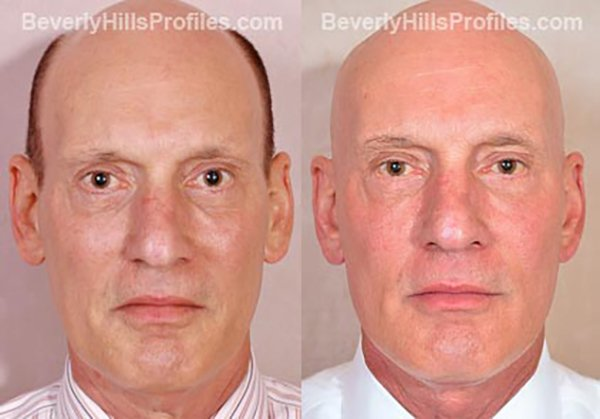 Facelift Before and After Photo Gallery - male, front view, patient 10