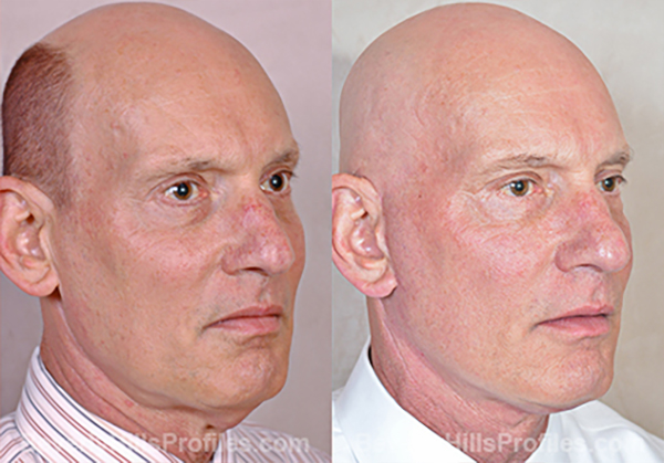 Facelift Before and After Photo - male, oblique view