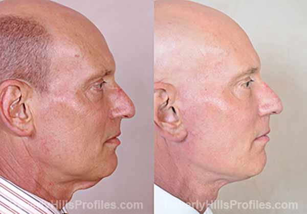 Facelift Before and After Photo - male, side view