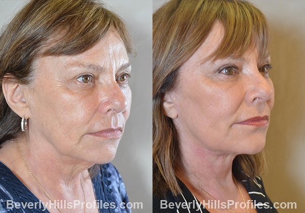 Facelift Before and After Photo - female, right oblique view