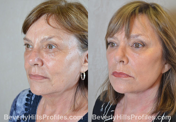 Facelift Before and After Photo - female, oblique view