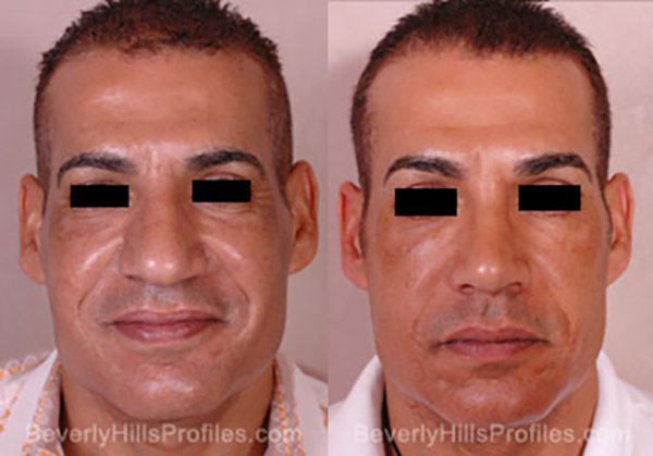 Facelift Before and After Photo Gallery - male, front view, patient 8