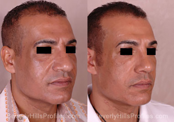 Facelift Before and After Photo Gallery - male, oblique view