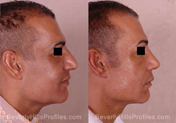 Facelift Before and After Photo Gallery - male, side view