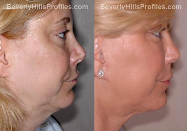Facelift Before and After Photo Gallery - famale, profile view