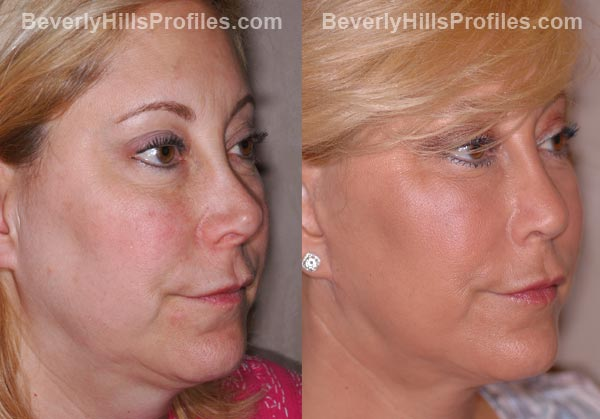 Facelift Before and After Photo Gallery - female, oblique view