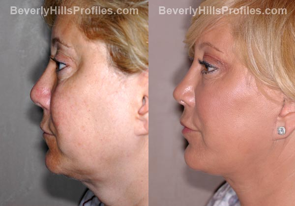 Facelift Before and After Photo Gallery - female, side view