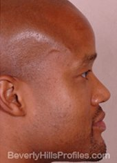 AFRICAN AMERICAN RHINOPLASTY - After Treatment Photo: male right side view, patient 2