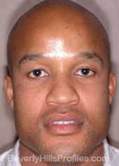 AFRICAN AMERICAN RHINOPLASTY - Before Treatment Photo: male front view, patient 2