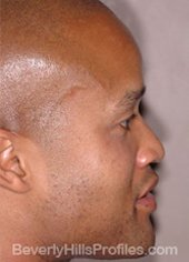 AFRICAN AMERICAN RHINOPLASTY - Before Treatment Photo: male right side view, patient 2