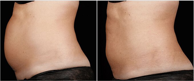 SculpSure Before and After Photos: female, left side view, patient 1