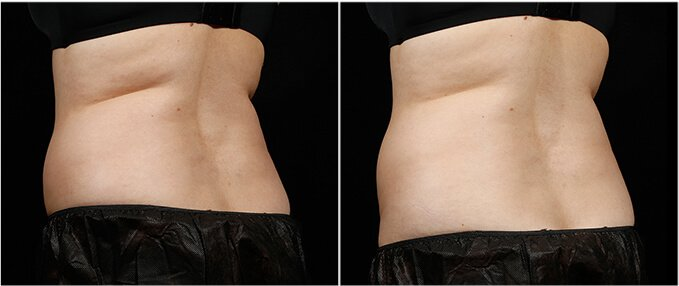 SculpSure Before and After Photos: female, back view, patient 2