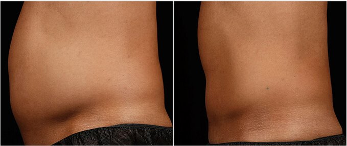SculpSure Before and After Photos: male, left side view, patient 3