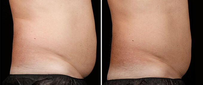 SculpSure Before and After Photos: male, right side view, patient 3