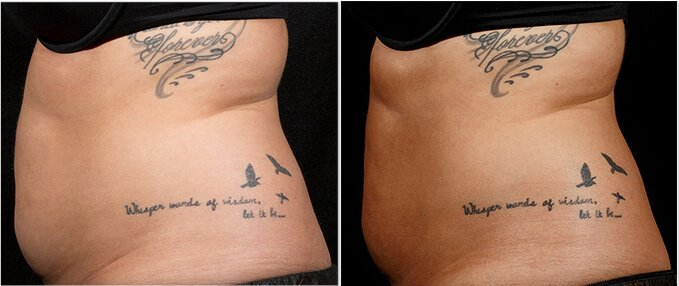 SculpSure Before and After Photos: female, left side view, patient 6