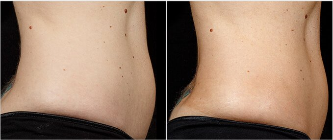SculpSure Before and After Photos: female, right side view, patient 7