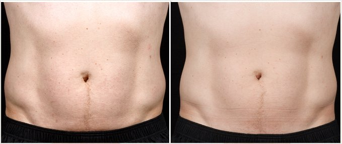 SculpSure Before and After Photos: male, front view, patient 15