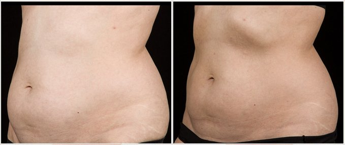 SculpSure Before and After Photos: female, left side oblique view, patient 17