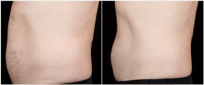 SculpSure Before and After Photos: male, left side view, patient 18