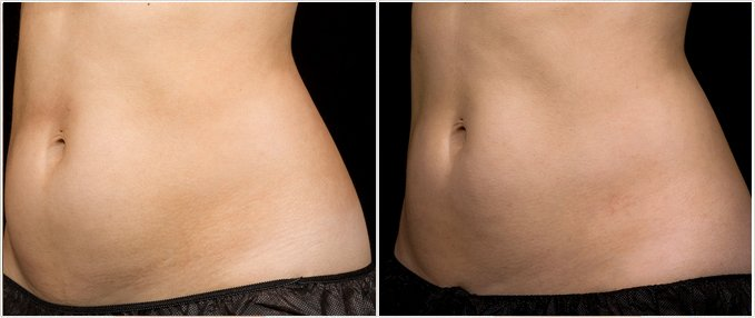 SculpSure Before and After Photos: female, left side oblique view, patient 9